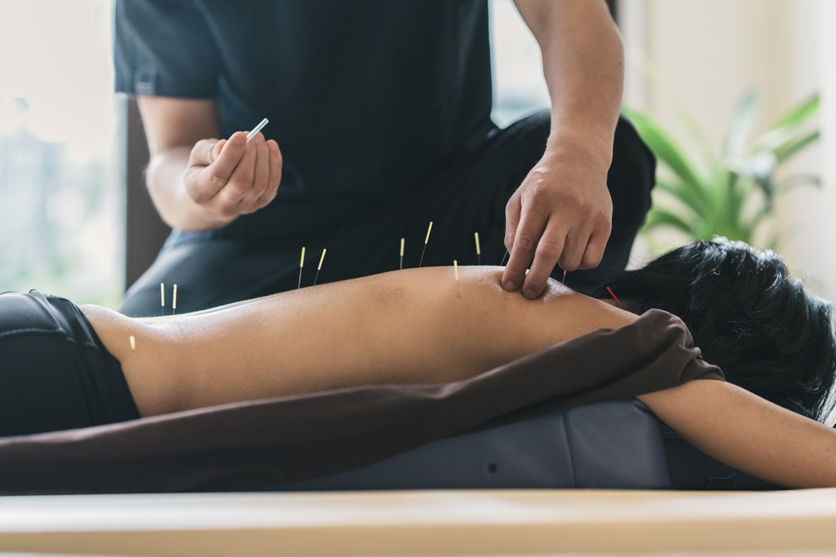 Acupuncture in kingston